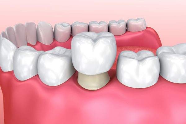Dental Crowns TAS