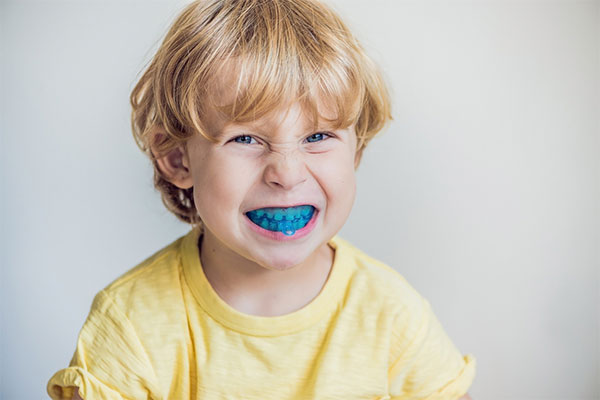 Myobrace Your Child's Teeth