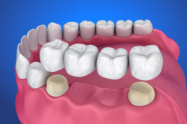 Dental Bridge Service